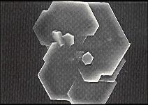 Zystin-Kristall